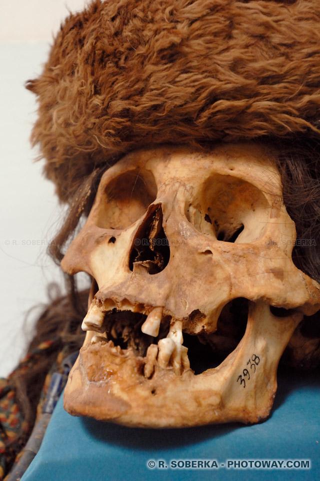 Photo d'un crâne humain - Photos de crâne au Chili
